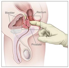 Screenings can also be very useful in helping pinpoint the cause of prostate complaints.